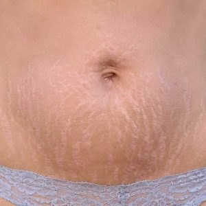 7 Killer Ways To Prevent Stretch Marks Formation