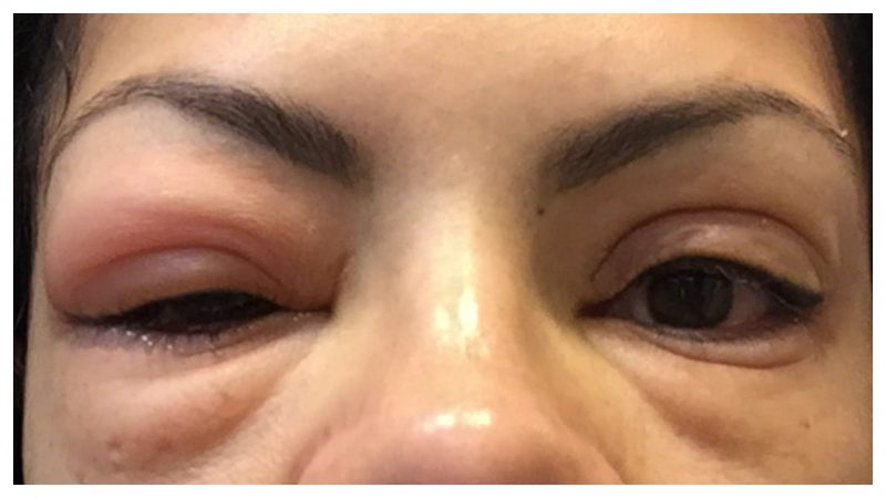 Best Way To Grow Eyelashes – Know About It