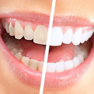 Why Should A Person Get The Teeth Whitening Kit At Home?